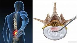 Minimalinvasive Operationen an der Wirbelsäule - Vergessene Alternativen